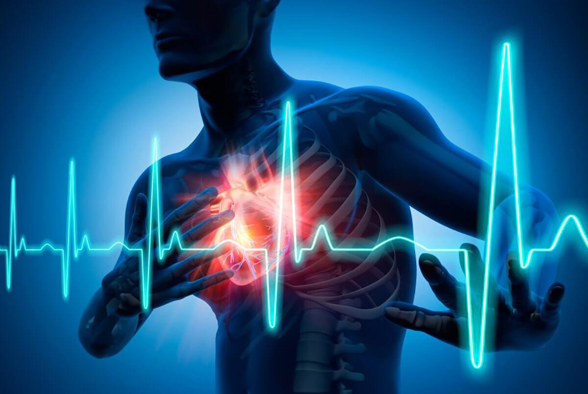 Atrial Fibrillation Fast Heart Rate