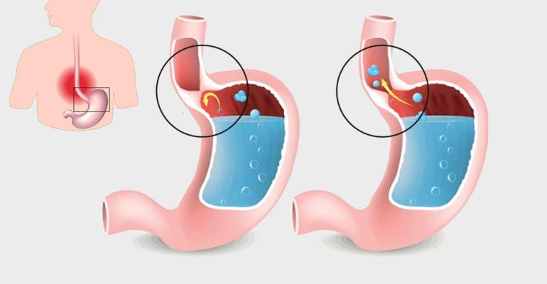 Gastroesophageal Reflux Disease Causes Food Pipe Irritation