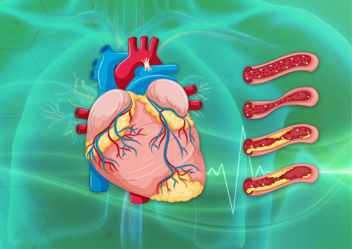 Heart Diseases Awareness