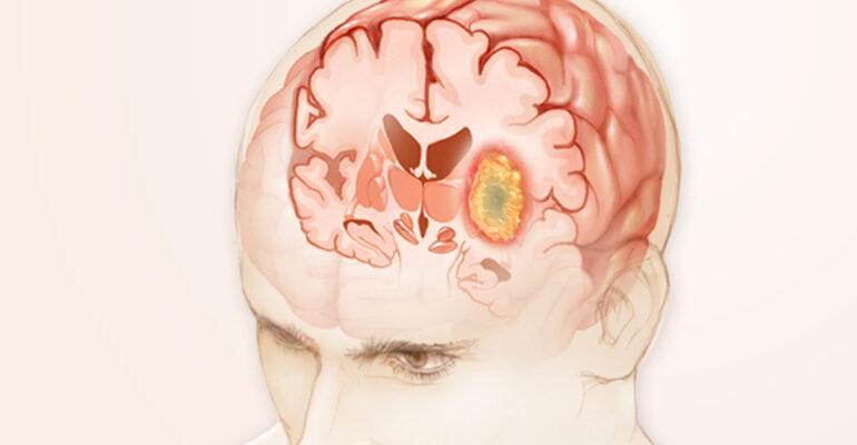 Brain Tumors – Common Symptoms and Treatments